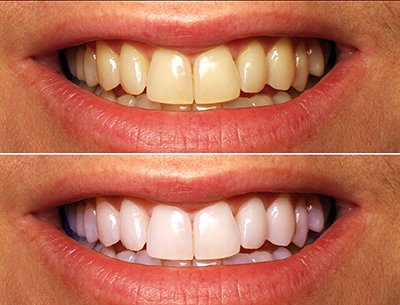 Cosmetic Dentistry Teeth Whitening at Nostra Dental Clinic, Cork